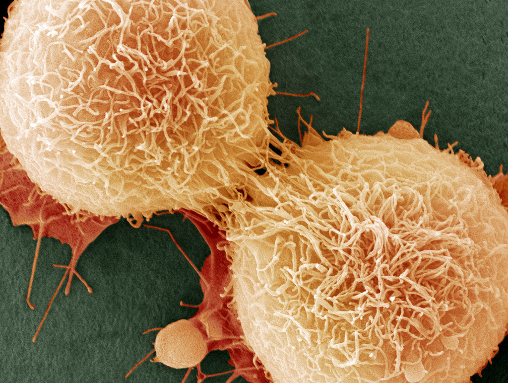 A close-up of cell mutations that cause cancer.