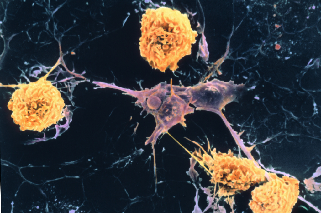A scanning electron micrograph shows microglial cells (yellow) ingesting branched oligodendrocyte cells (purple), a process thought to occur in multiple sclerosis. Oligodendrocytes form insulating myelin sheaths around nerve axons in the central nervous system.