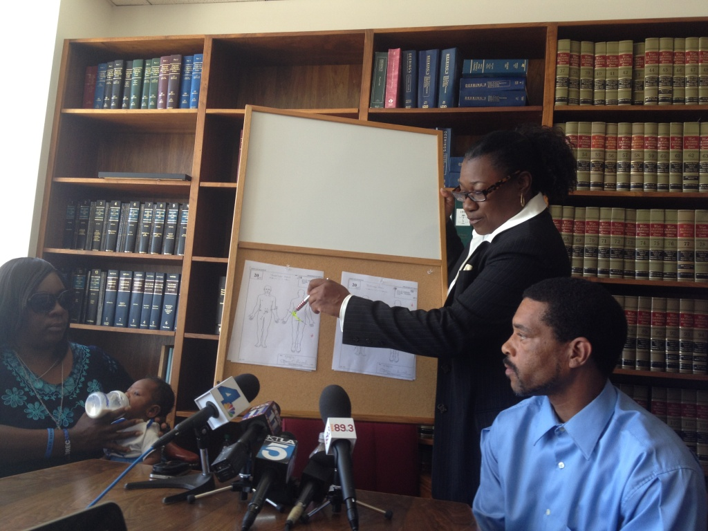 Attorney Caree Harper points to diagrams in the autopsy report of Kendrec McDade, 19, who was shot and killed by Pasadena police. His parents sit to the left and right of Harper.