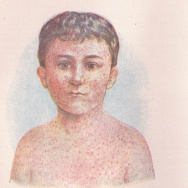Measles illustration vintage