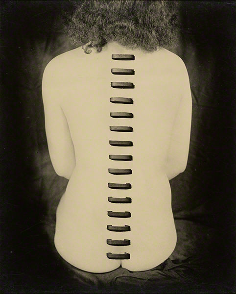 "Stapled Flesh, 1949, Kansuke Yamamoto, gelatin silver print. From the collection of Gloria Katz and Willard Huyck. Marc Haefele writes, ""Yamamoto seems to have disdained serenity for his entire working life and to always been involved in portraying the human psyche."""