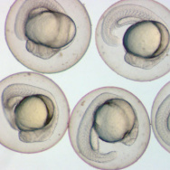 Zebrafish embryos, taken 28 hours after fertilization (a little over a third of the way through embryonic development).