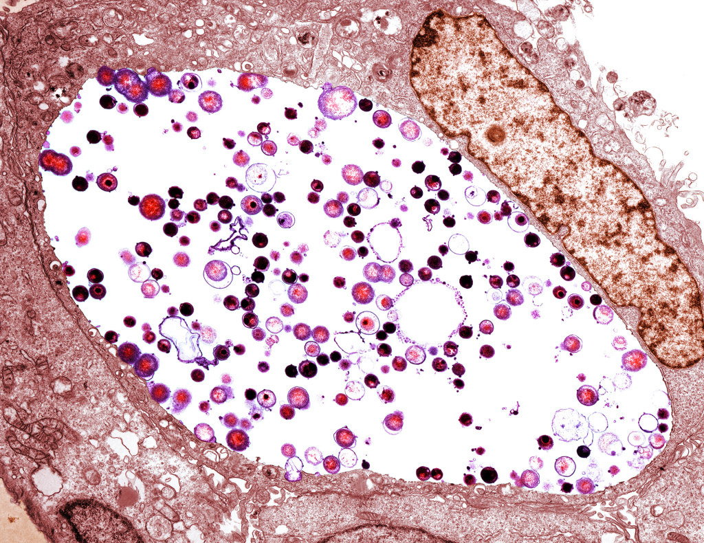 A tinted transmission electron micrograph of <em>Chlamydia trachomatis</em> bacteria (light purple/black) inside a cell. Chlamydia is the most common sexually transmitted disease in the U.S., with more than 1.7 million reported cases in 2017.