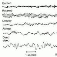 EEG Trace