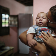 David Henrique Ferreira, 5 months, who was born with microcephaly, is kissed by his mother Mylene Helena Ferreira in Recife, Pernambuco state, Brazil.