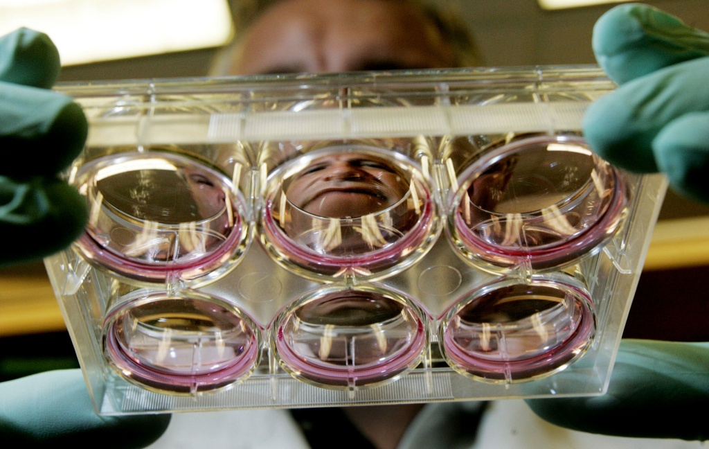 Lab assistant Dave Ferguson holds-up stem cell cultures in a lab at the Reeve-Irvine Research Center at the University of California Irvine.