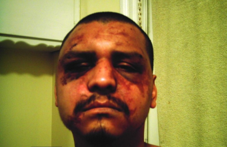 Gabriel Carrillo was beaten by deputies while visiting his brother in Men's Central Jail, according to the ACLU.