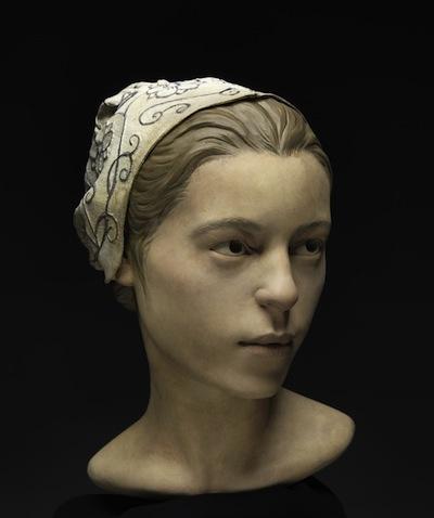 Facial reconstruction of