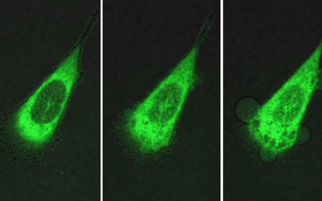A human prostate cell under attack by motorized molecules.