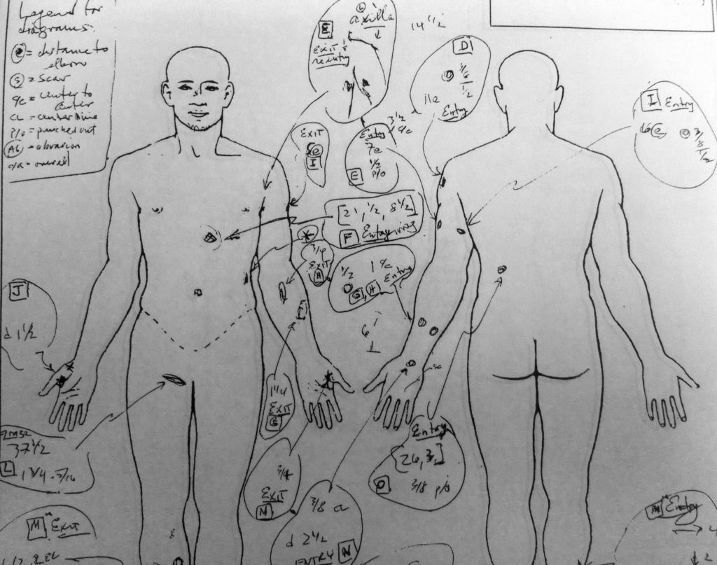 A drawing from Abdul Arian's autopsy shows multiple bullet wounds. Arian's family is suing LAPD, claiming they used excessive force when officers shot and killed the 19-year-old.