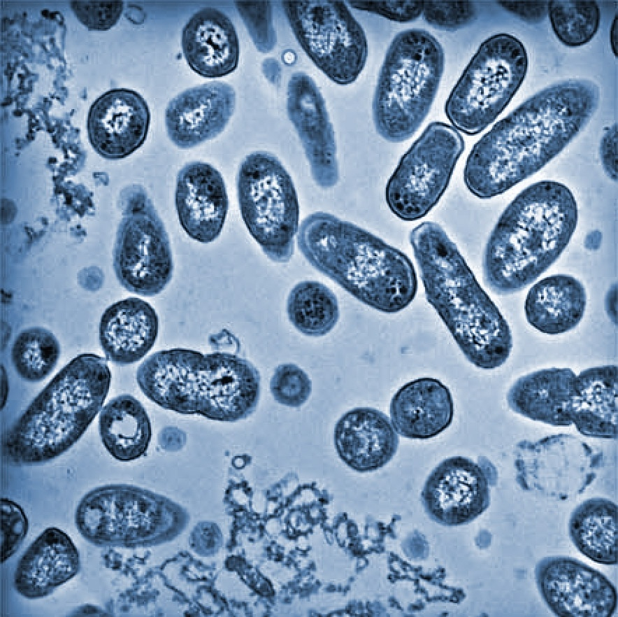 Cells of salmonella isolated from macrophages.