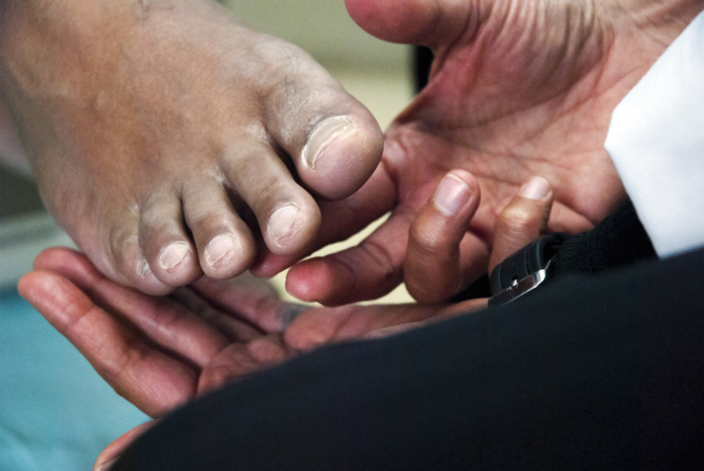 Swollen, painful feet are a common symptom for people living with rheumatoid arthritis.