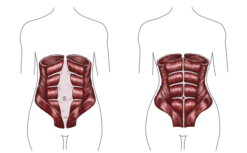 "During pregnancy, the abdominal muscles responsible for a ""six pack"" stretch apart (left) to accommodate a growing fetus. After birth, the muscles don't always bounce back, leaving a gap known as the mommy pooch."