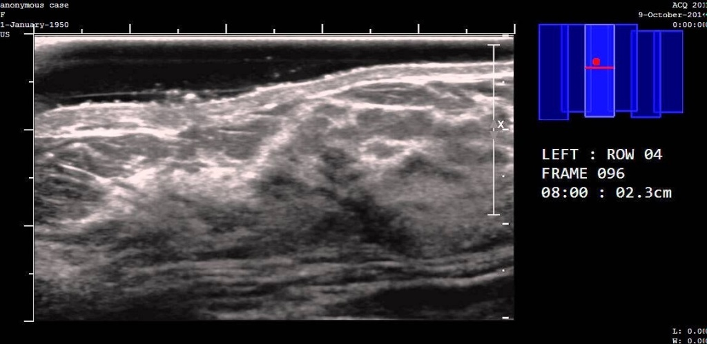 A screenshot of a SonoCiné automated ultrasound.